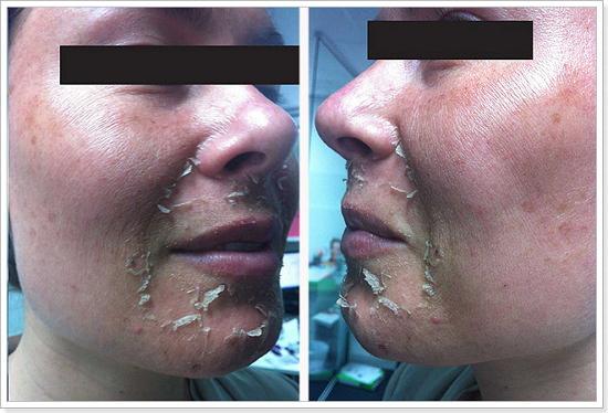 Лечение акне ретиноловым пилингом скачать бесплатно массаж всего тела