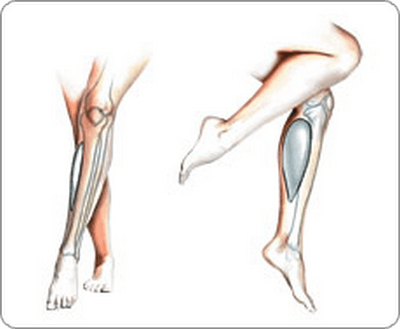 выпрямление ног куропластикой