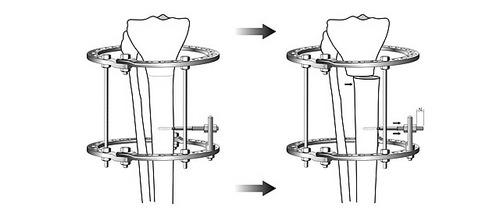 медиальная коррекция формы ног