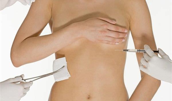 Значительное увеличение груди