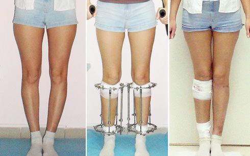 выпрямление ног аппаратом илизарова