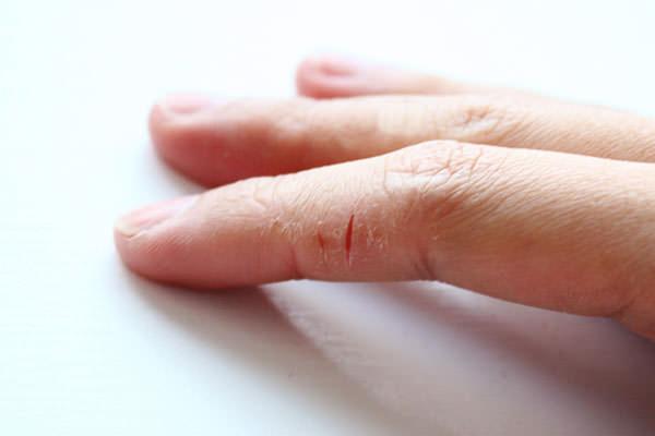 трещины на пальцах рук фото