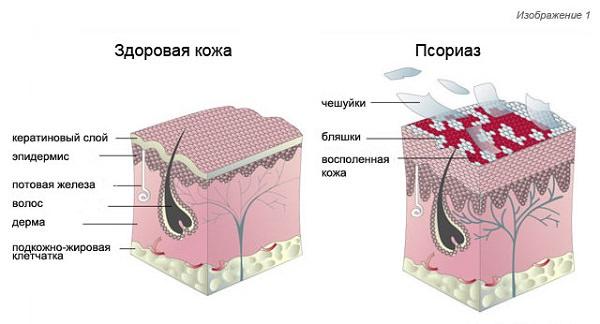 Псориаз: причины возникновения, виды и методы лечения