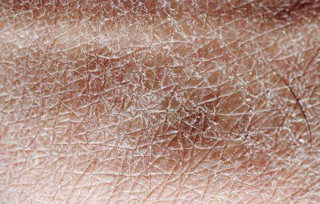 Правильный уход за сухой и чувствительной кожей тела