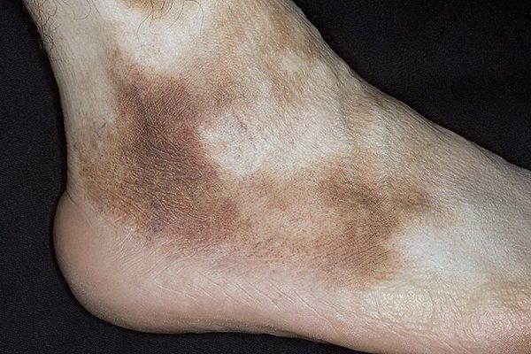 пигментный дерматоз