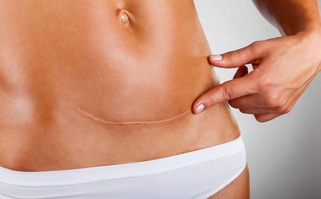 Гипертрофические и келоидные рубцы на коже