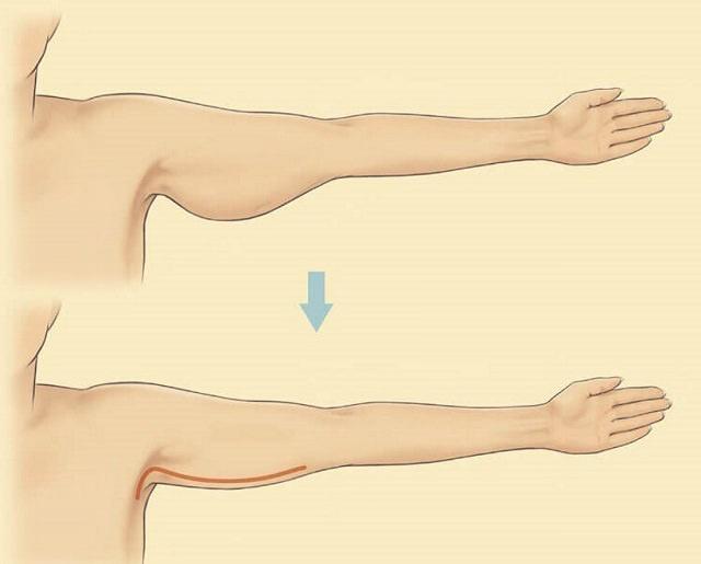 Результат липосакции плеч