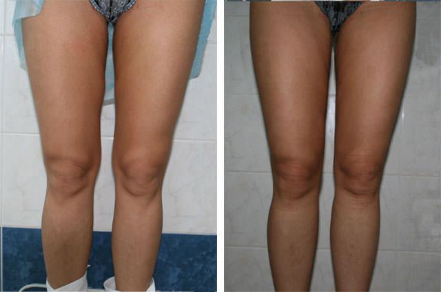 Липосакция на коленях