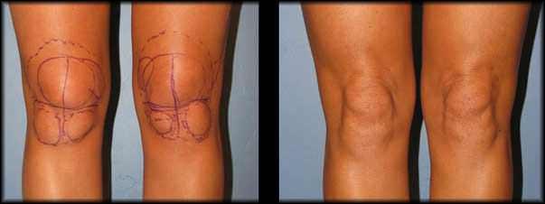 Липосакция коленей До и После