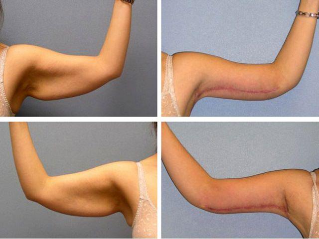 Удаление кожи на плечах