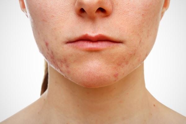 Герпес на лице: лечение быстро и правильно