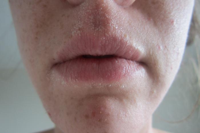 Шелушится кожа на лице - что делать и как устранить?