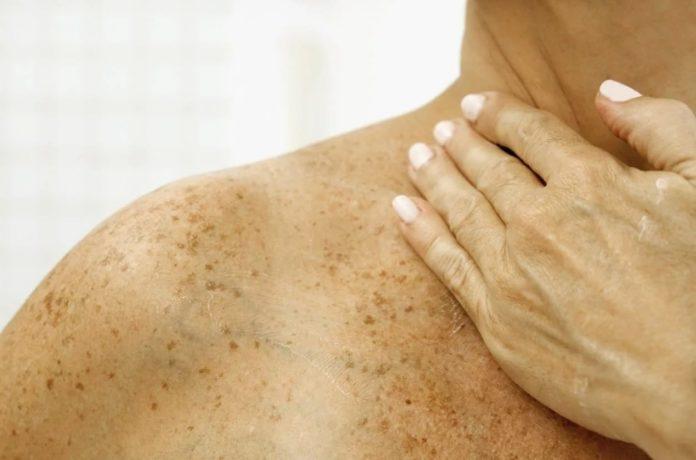 Опасная пигментация кожи