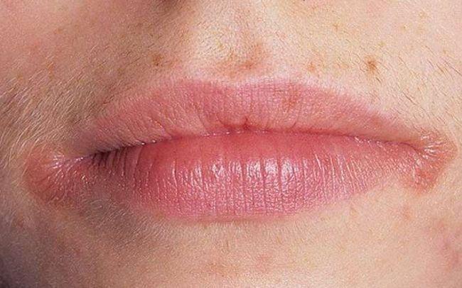 Ангулит на губах