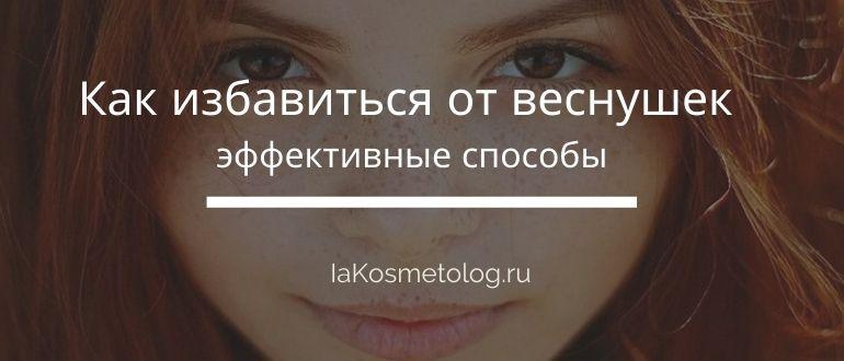 Как убрать веснушки с лица в домашних условиях ⋆ ElenaPrekrasnaya
